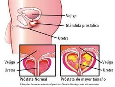 prostatitis causa más común